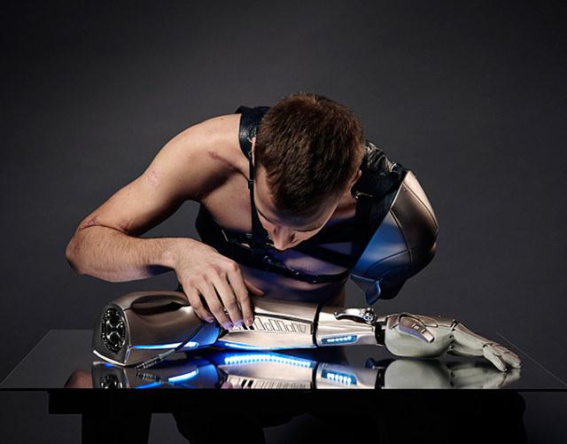 Tangan diamputasi, pria ini ciptakan tangan buatan dikendalikan drone