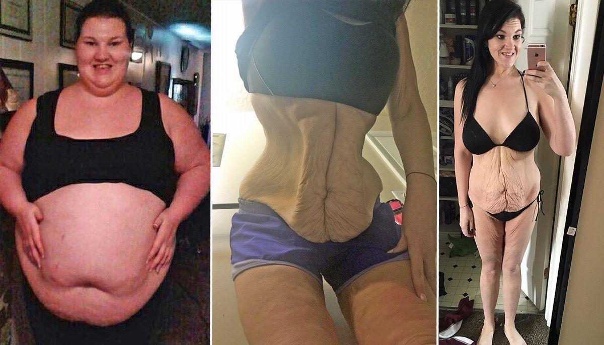Gara-gara kena stroke, wanita ini sukses turunkan BB sampai 79 kg