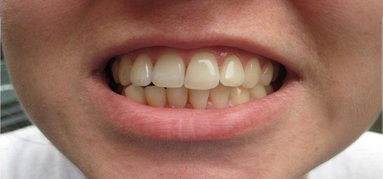 Gigi Kuning Terbukti Lebih Kuat Ketimbang Gigi Putih Ini Alasann