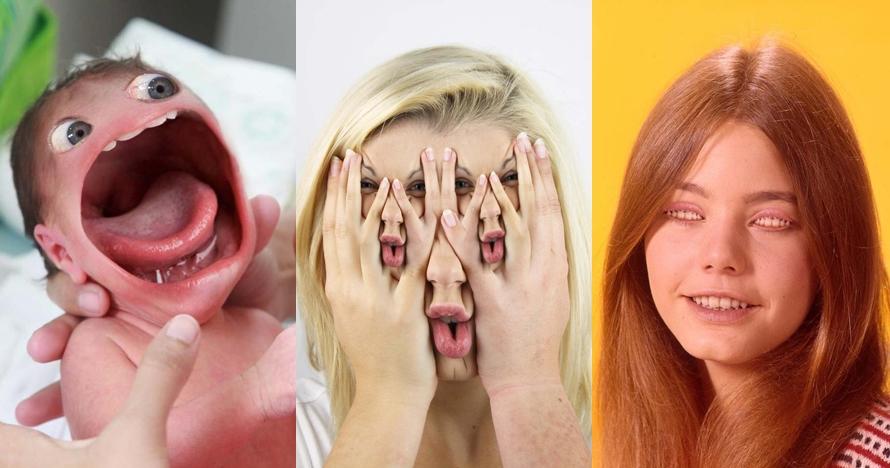 15 Editan foto wajah ini absurd banget, bikin geleng-geleng kepala
