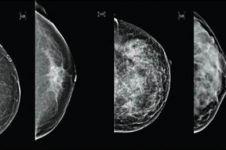 Tak disangka, obat diabetes bisa bantu atasi kanker payudara