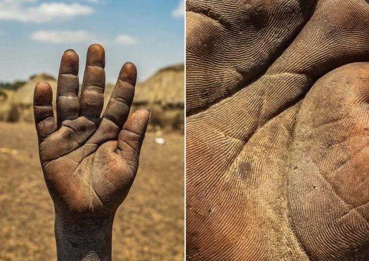 13 Foto Telapak Tangan Pekerja Ini Bukti Kerasnya Membanting
