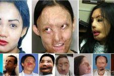 11 Foto before-after hasil face off ini bukti kehebatan dunia medis