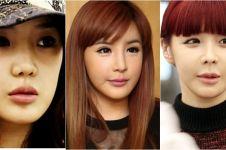 5 Seleb Korea yang wajahnya malah jadi aneh setelah oplas, gagal ya?