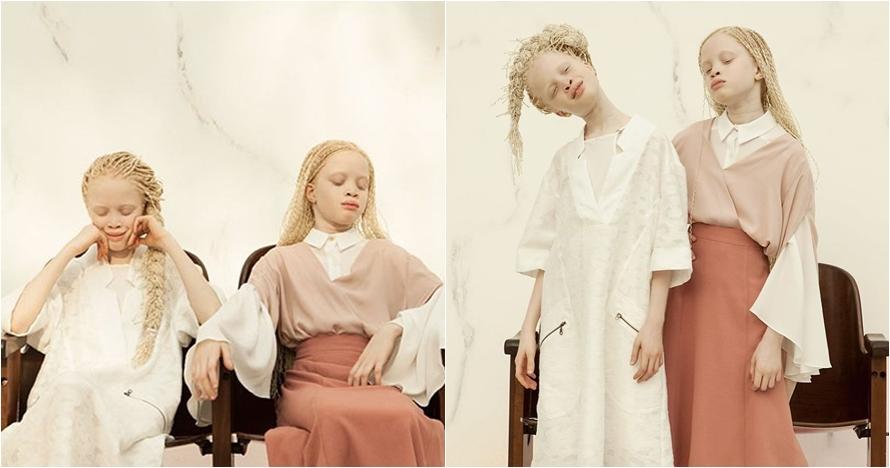 Gadis kembar ini buktikan albino punya pesona kecantikan alami