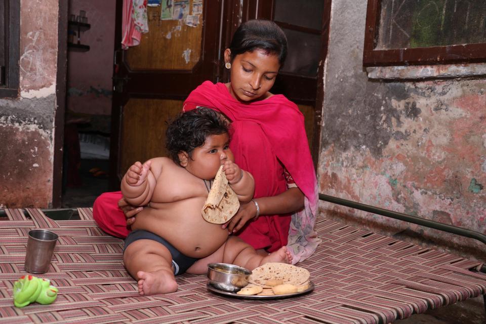 bayi obesitas Chahat Kumar © 2017 thesun.co.uk