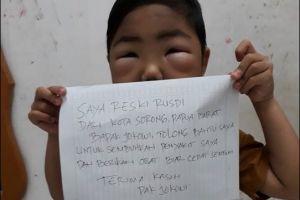 Idap sindrom nefrotik, bocah ini bikin video untuk Presiden Jokowi