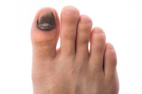 Ini penyebab kenapa kuku kaki berwarna hitam