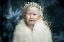 12 Potret Nariyana, gadis albino yang curi perhatian dunia modeling