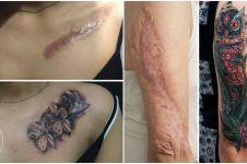 Kreatif maksimal, begini jadinya kalau bekas luka disulap jadi tato