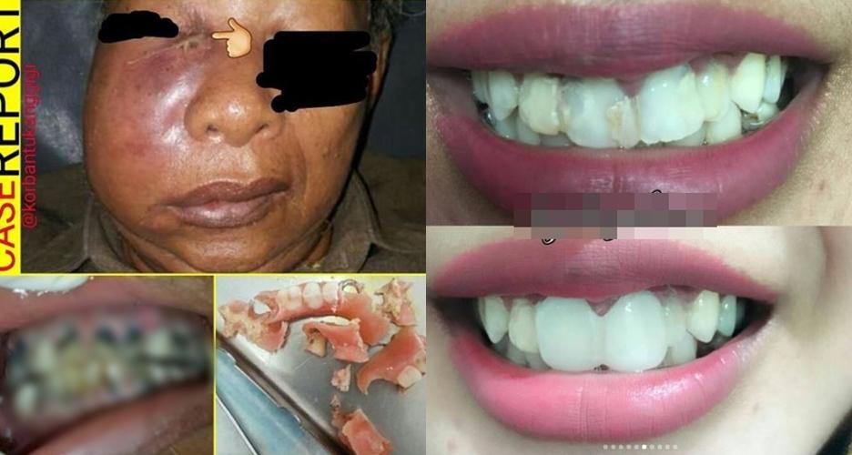 7 Foto Mengerikan Akibat Perawatan Gigi Di Praktik Ilegal Serem