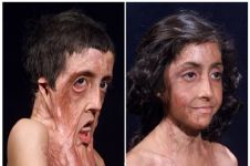 6 Foto before-after transplantasi wajah ini bukti canggihnya medis