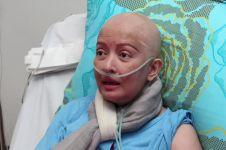 5 Fakta penyakit mengerikan yang diderita Yana Zein sebelum tutup usia