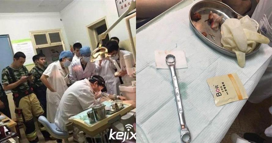 Mr P pria ini masuk kunci ring , yang bisa mencopot hanya dokter gigi