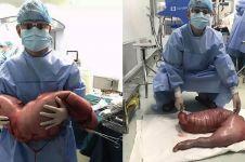 Pria ini sembelit bertahun-tahun, ternyata ada 13 kg tinja di ususnya