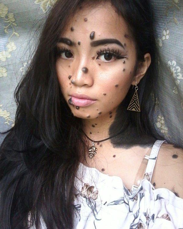 gadis penuh tahi lalat  © 2017 Instagram