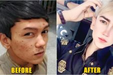 Transformasi wajah cowok ini jadi bahan cibiran netizen