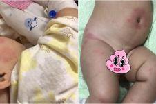 Kisah bayi salah diagnosis ini bikin para ibu harus waspada