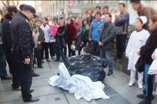 Dulu dijuluki pria tergemuk di China, begini kondisinya sekarang