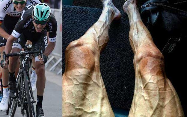 Potret ngeri kaki atlet balap sepeda dunia, ini lho penyebabnya