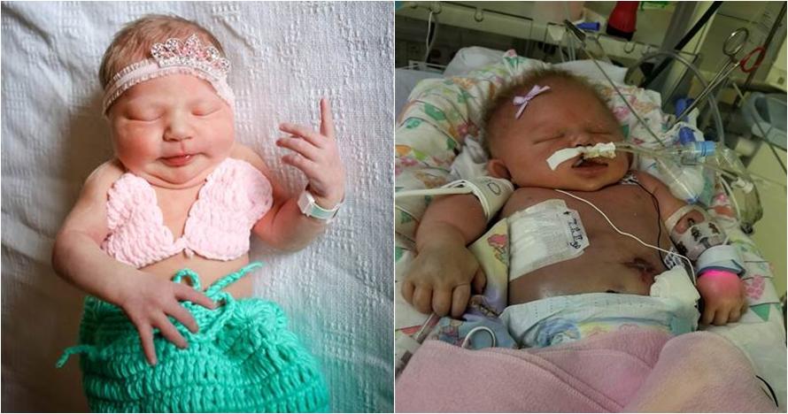 Kisah haru bayi meninggal setelah tertular penyakit melalui cium bibir