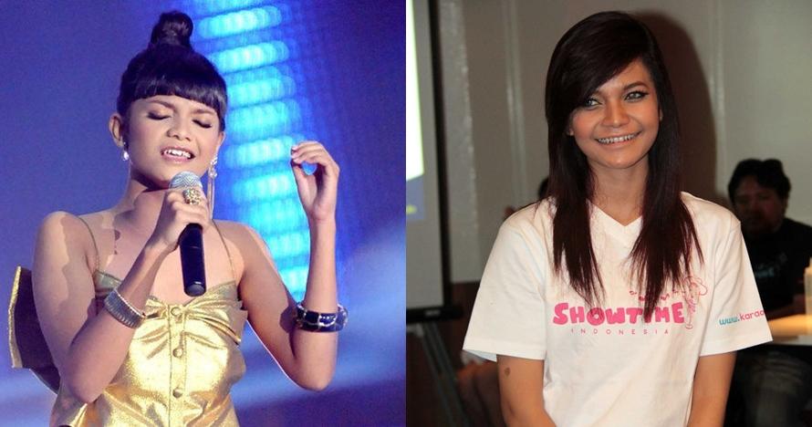 12 Foto transformasi Citra Scholastika, kini cantik bak Kylie Jenner