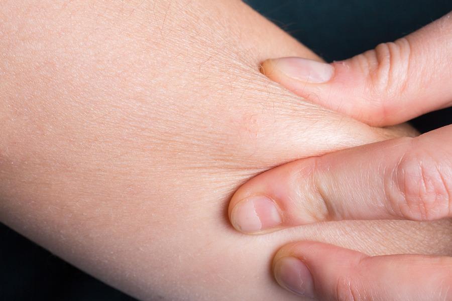 Jangan anggap sepele, ini pentingnya pakai moisturizer bagi kulit