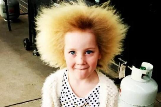 6 Orang ini alami penyakit aneh, rambutnya berdiri & tak bisa disisir