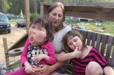 Dokter sampai bingung obati anak ini gara-gara idap penyakit langka
