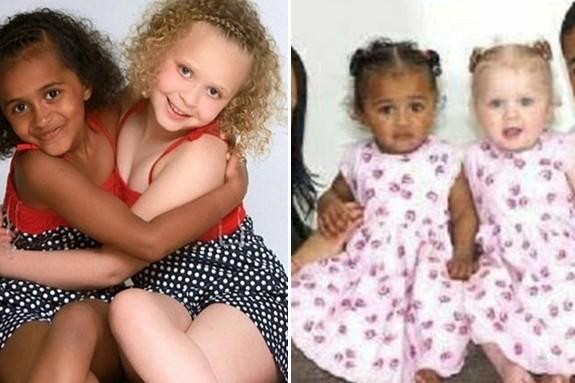 10 Pasangan beda warna kulit ini ternyata saudara kembar, tak nyangka