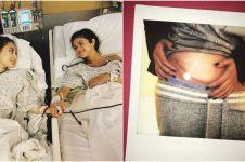 Kisah haru Selena Gomez sakit lupus, dapat donor ginjal dari sahabat