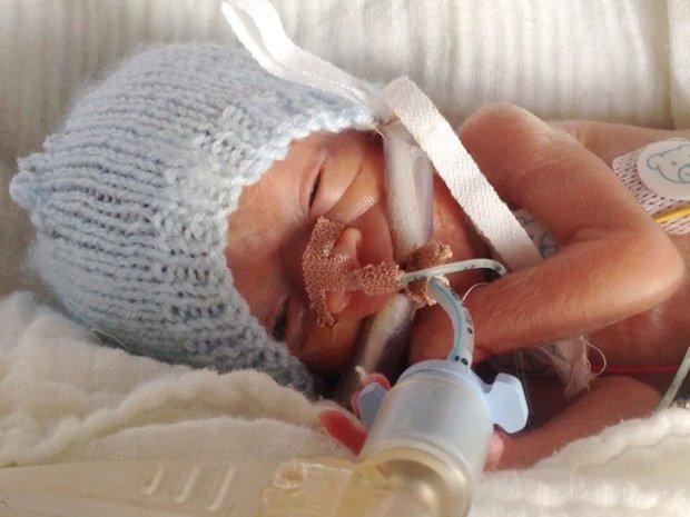 Terlahir seberat 0,5 kg, setelah 4 tahun kondisi bayi ini bikin takjub