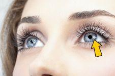 Jangan sepelekan, 12 kondisi mata ini bisa jadi indikator kesehatanmu