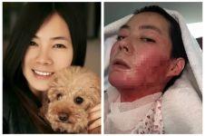 Kisah tragis wanita yang disiram alkohol & dibakar suaminya