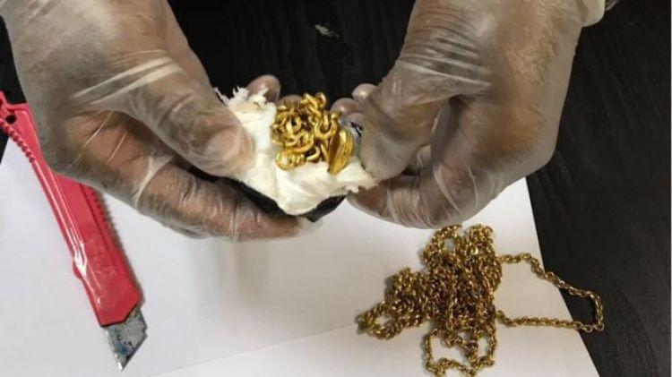 5 Benda tak biasa yang bersarang dalam dubur manusia, ada 1 kg emas