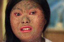 Derita penyakit langka, gadis ini miliki kulit bersisik seperti ular