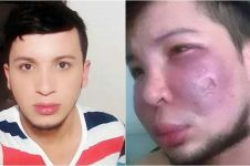 Pria ini jadi korban operasi dokter palsu, pipinya melepuh & bernanah