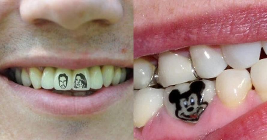 10 Kreasi tato unik di gigi, kamu berani coba?