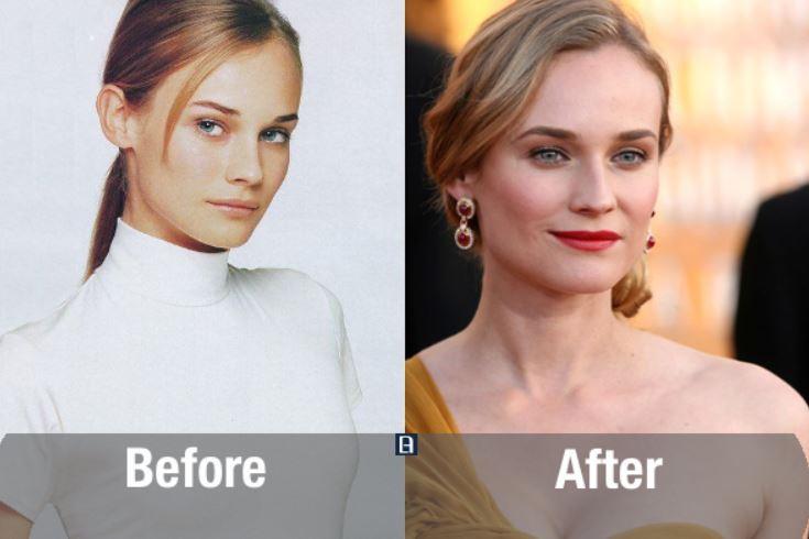 Seleb Hollywood sebelum dan sesudah oplas © 2017 brilio.net