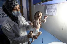 4 Potret bayi gizi buruk akibat perang ini bikin hatimu teriris