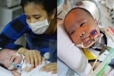 Potret perjuangan bayi dengan penyakit kompleks ini akan sentuh hatimu