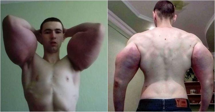 Gara-gara overdosis obat kimia, otot pria ini berubah bak Popeye