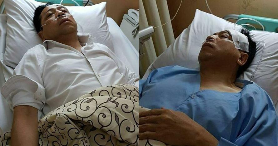 Dikabarkan terluka parah, ini foto Setnov yang beredar di medsos