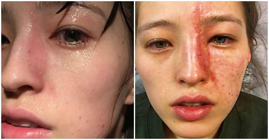Kesemprot parfum ruangan, wajah wanita ini rusak dalam waktu 10 menit