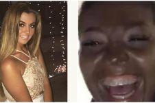 Gara-gara salah pakai lotion, wajah gadis cantik ini malah jadi hitam