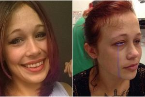 Nekat bikin tato di mata, gadis ini terancam alami buta permanen