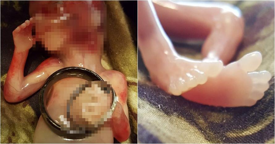 Kisah pilu wanita unggah foto janinnya usai keguguran