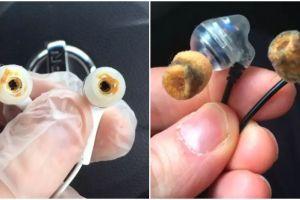 15 Potret earphone kotor ini bikin mual mau muntah, jorok banget