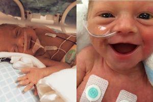 13 Potret bayi prematur yang tersenyum lebar ini bukti mereka kuat