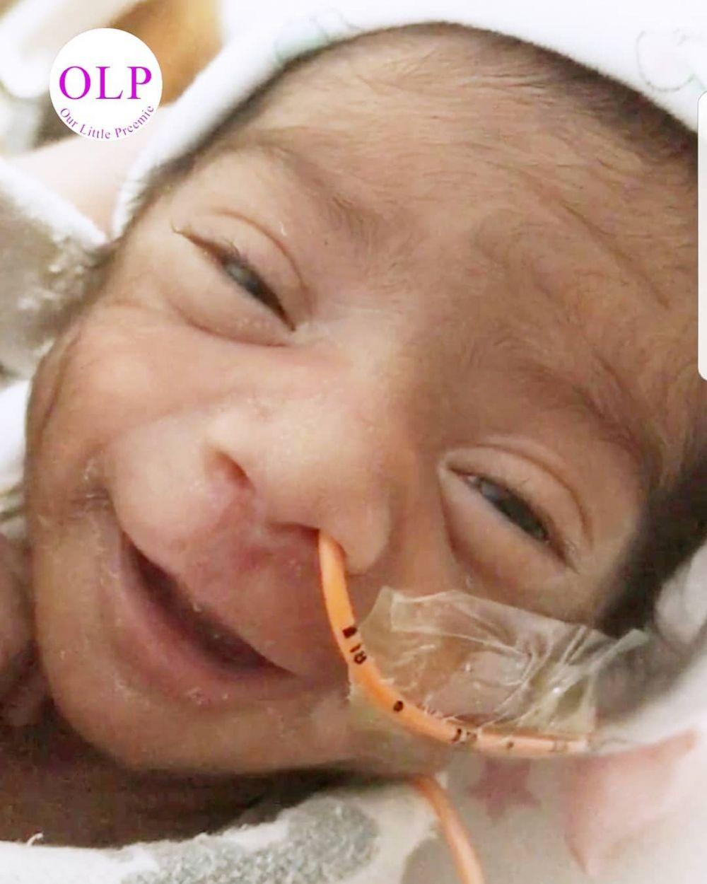 13 Potret bayi prematur © 2018 brilio.net